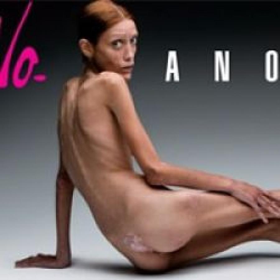 Anoressia, il rifiuto del cibo esprime la violenza familiare