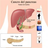 Cancro pancreas