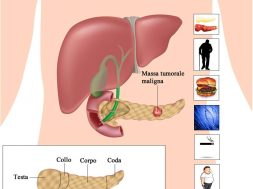 Cancro_pancreas